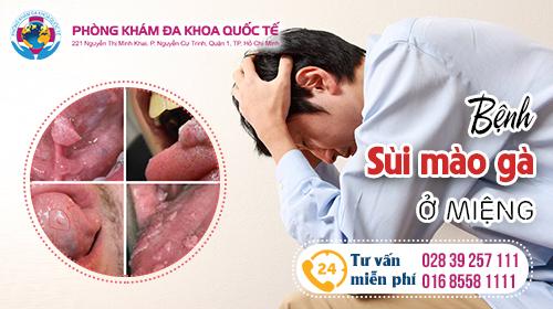 phương pháp điều trị sùi mào gà ở miệng