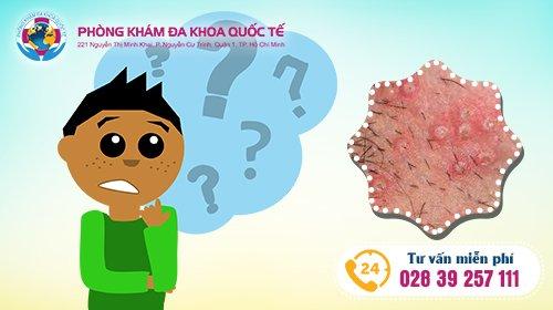 bệnh sùi mào gà có nguy hiểm không?