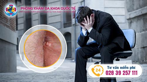 tìm hiểu về bệnh sùi mào gà ở nam giới là như thế nào