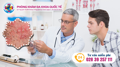 trị bệnh sùi mào gà ở nam giới tại đa khoa quốc tế