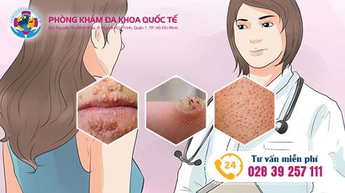 bệnh sùi mào gà ở phụ nữ là bệnh gì, nguyên nhân, tác hại và cách chữa trị