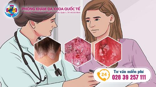 điều trị sùi mào gà ở nữ bằng phương pháp ALA- PDT