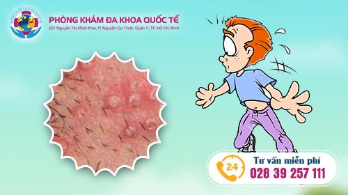 điều trị bệnh sùi mào gà tại đa khoa quốc tế hồ chí minh