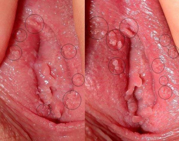 Hình ảnh về bệnh sùi mào ở nữ giai đoạn khởi phát, các nốt sùi mọc rải rác ở bộ phận sinh dục.