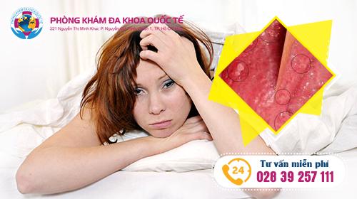 triệu chứng và nguyên nhân bệnh sùi mào gà ở nữ