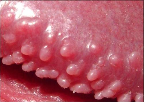 sùi mào gà có thể gây ung thư dương vật hay không