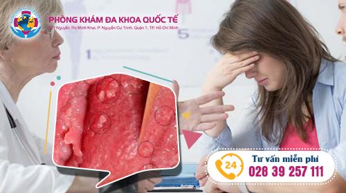 triệu chứng bệnh sùi mào gà ở nữ và phương pháp điều trị