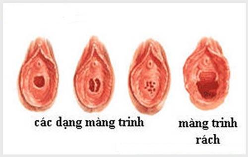 Dấu hiệu rách màng trinh và khắc phục