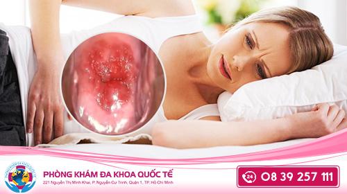 Khí hư màu nâu nguyên nhân của viêm âm đạo