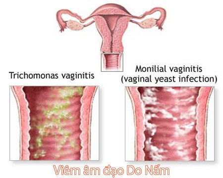 Viêm nấm âm đạo là bệnh gì